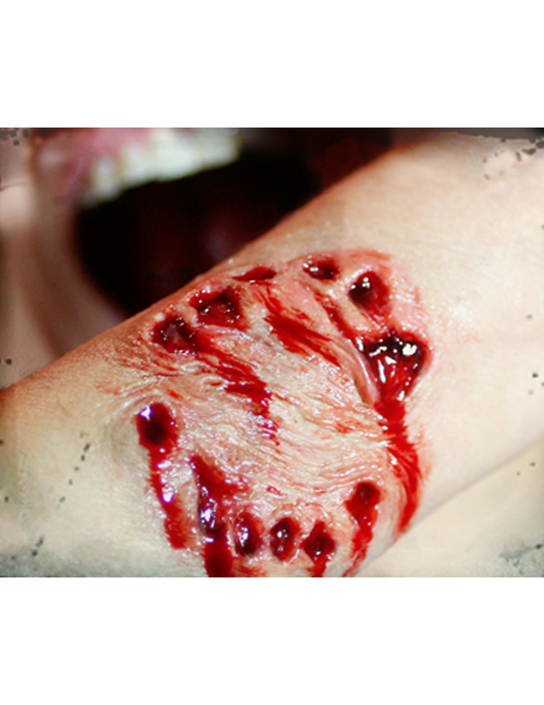 Numéro un blessure de sexe